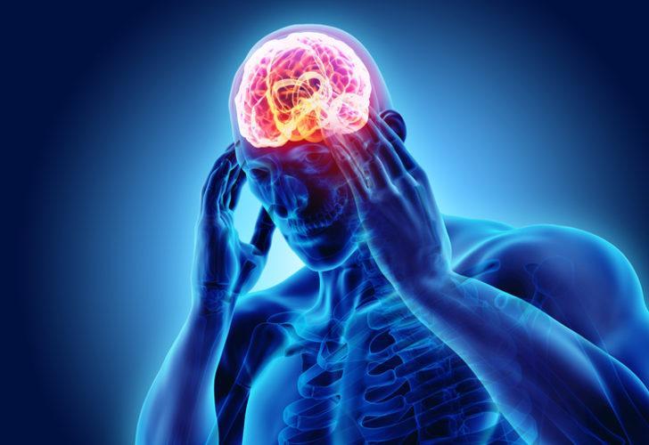 Migrene ne iyi gelir? Migren belirtileri nelerdir?  Migren en çabuk nasıl geçer?