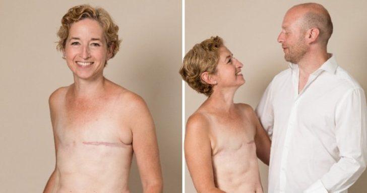 Meme kanserini 3 kez yendi! 'Göğsümüz olmadan da güzeliz'