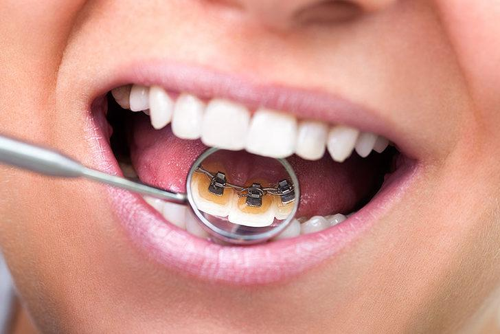 Lingual diş teli nedir?