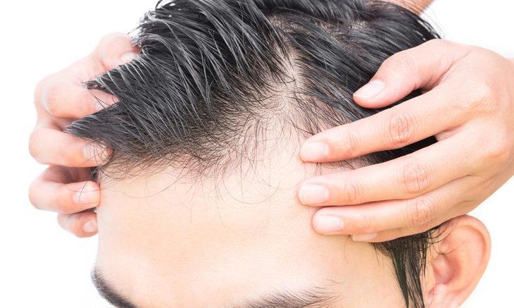 Şakak bölgesine özel saç ekimi