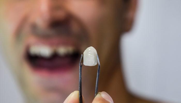 Rüyada diş kırılması ne anlama gelir? Diş kırılması görülen rüyaların tabirleri