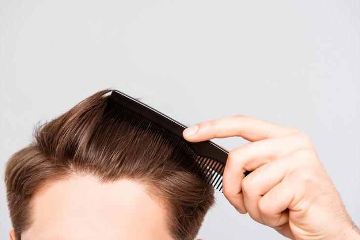 Kelliğin kalıcı tedavisi saç ekimidir