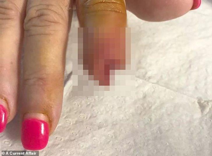 Aman dikkat! Manikür yaptırmaya gitti parmağından oldu