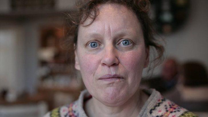 Yüz körlüğü hastalığı: 'Sevdiklerimin yüzünü hatırlayamıyorum'