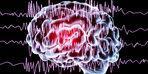 Akraba evliliği epilepsi riskini 40 kat artırıyor!