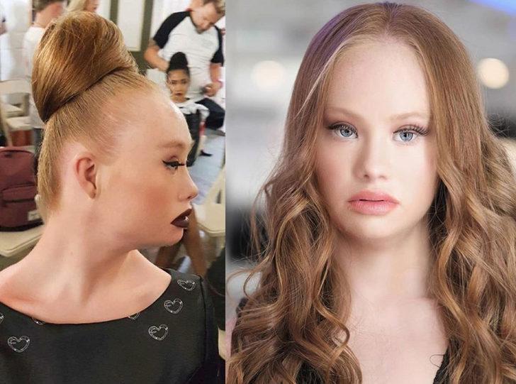 Down Sendromlu model Victoria's Secret modeli olmak, farkındalık yaratmak istiyor