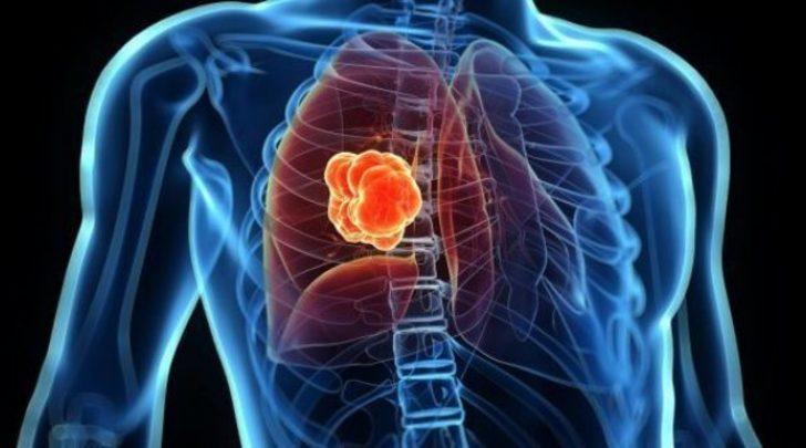 Akciğer kanserinde kapalı ameliyatların önemi...