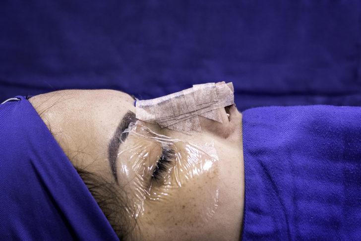 Burun ameliyatı olmadan önce kendinize bu 5 soruyu sorun!