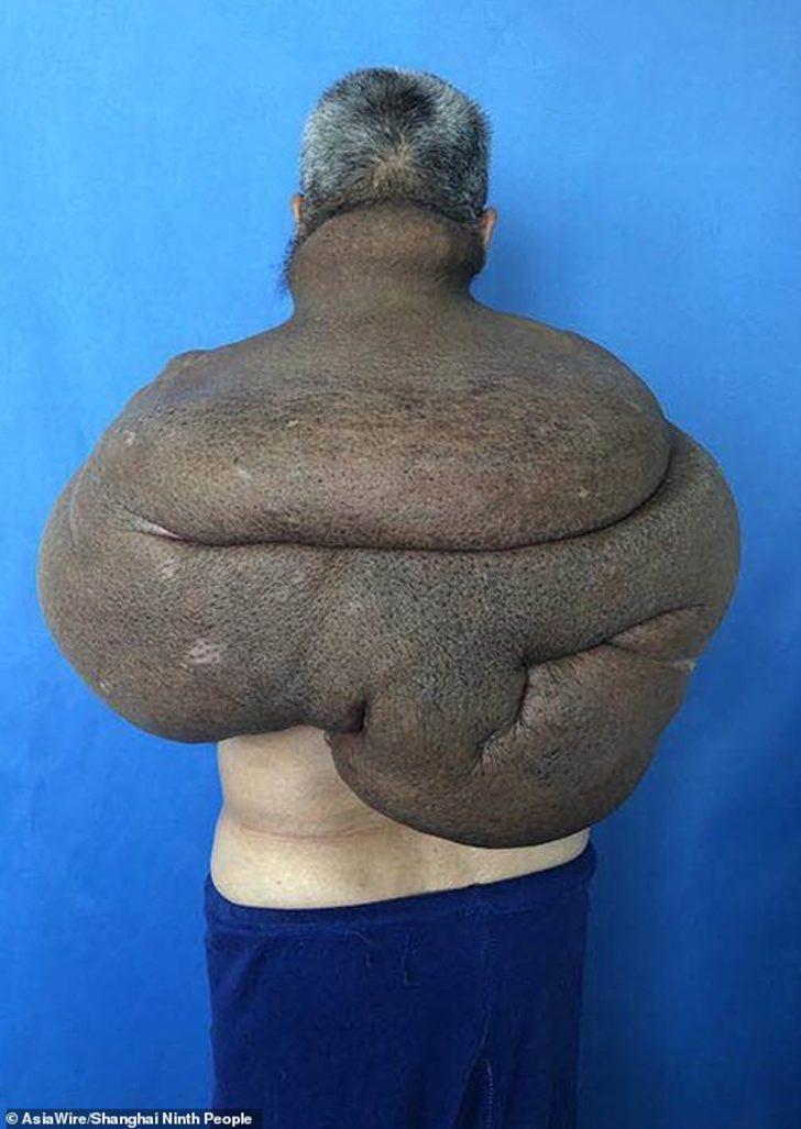 15 kiloluk tümör tüm sırtını sardı!