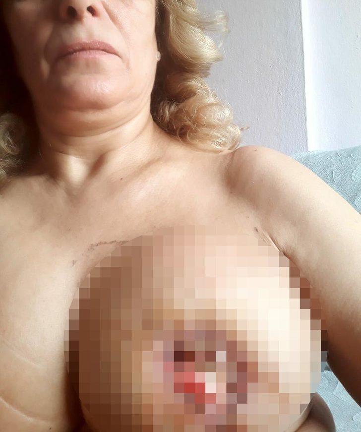 Meme küçültme ameliyatı yaptıran kadınlar kabusu yaşadı!