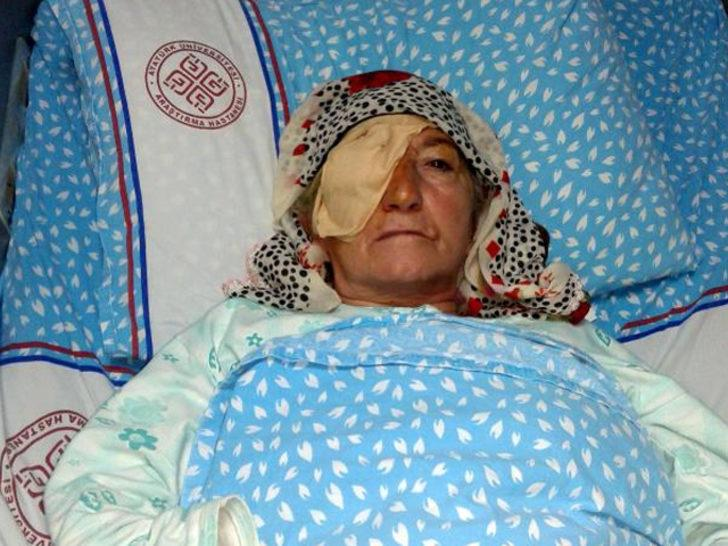 Katarakt ameliyatları sonrası 3 kadın görme yetisini kaybetti! 570 bin liralık dava açıldı