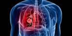 Küçük hücreli akciğer kanserinde yeni umut