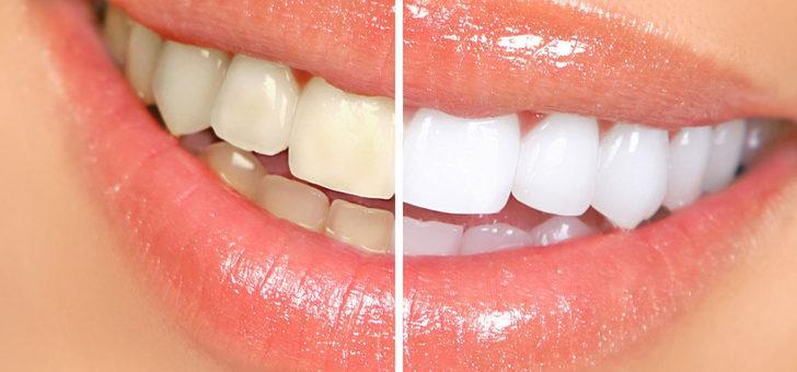 Sivilceleri kurutuyor, dişleri beyazlatıyor: Oksijenli suyun hiç bilmediğiniz kullanım alanları