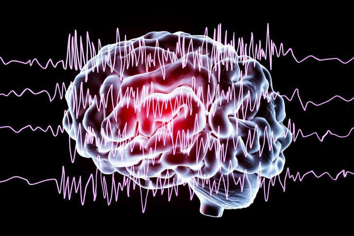 3 epilepsi hastasından 2'si iş bulmakta zorlanıyor
