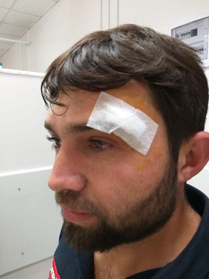 Kayseri'de ambulans sürücüsüne kasklı saldırı