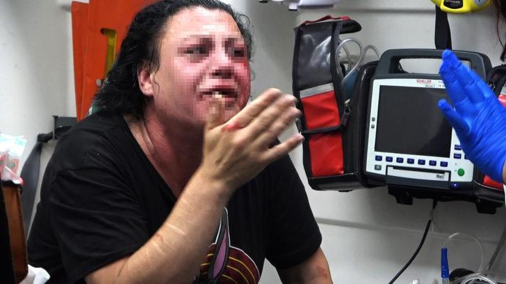 Eskort sitesinden tanıştığı kişiyi,transseksüel olduğunu öğrenince dövdü
