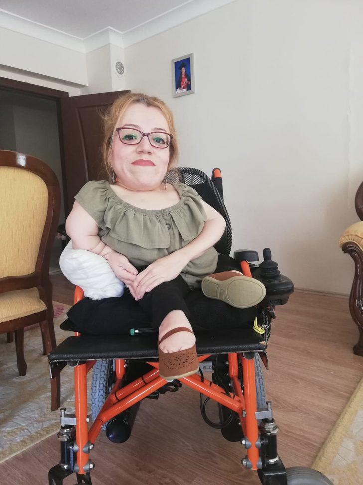 Cam kemik hastası kadının büyük azmi