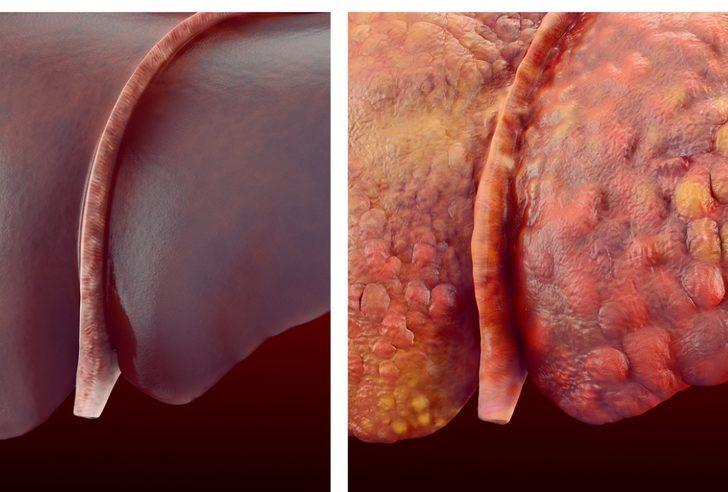 Alkol aldığınızda karaciğerinize neler olur?