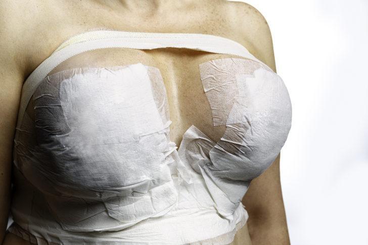 Kadınlar en çok meme büyütme ameliyatlarını tercih ediyor