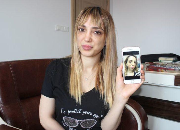 Estetik mağduru kadının yüzü tanınmaz hale geldi: Yüzümde iki yanak daha oluştu