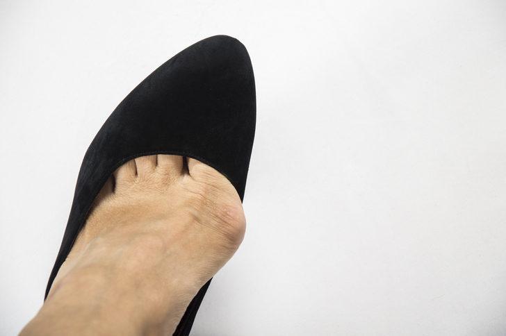 Ayak sağlığınızı korumak için babet ayakkabıları sürekli kullanmayın