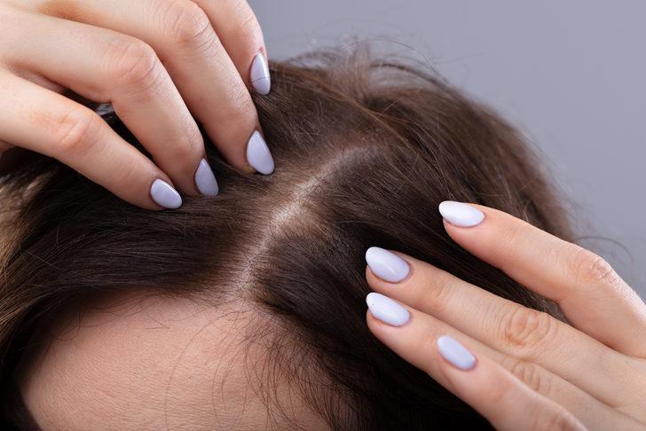 Saç dökülmesine karşı modern çözümler