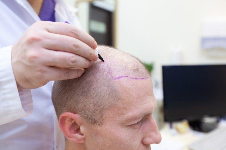 Hastane ortamı dışında yapılan saç ekimleri Türkiye'nin sağlık turizmini tehdit ediyor