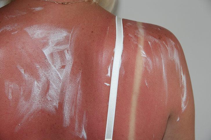 'Sağlıklı bronzlaşma' diye bir şey yok! Güneş yanığı öyküsü deri kanserine yol açıyor