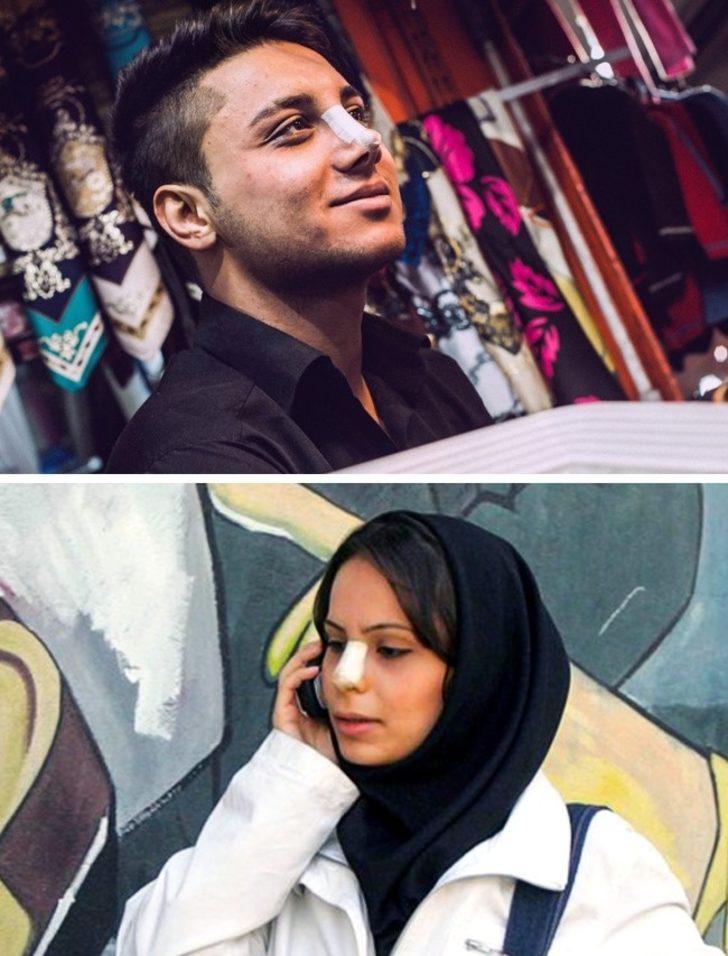 Burun estetiği - İran
