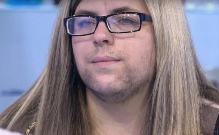 Doğumdan sonra sakalları çıkan talihsiz kadın: Kocam benden yıllarca tiksindi