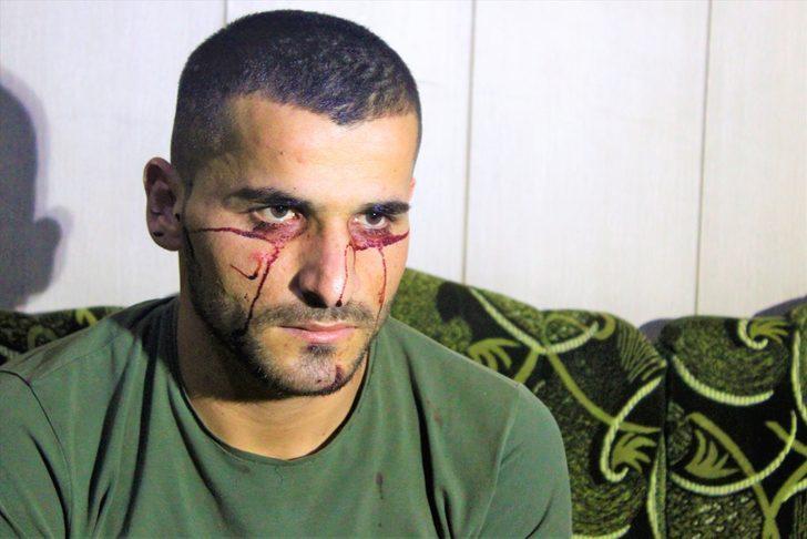 'Kan ağlayan' Iraklı genç hastalığına çare arıyor