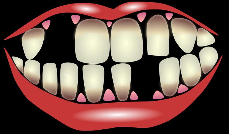 Yüzdeki kırışıklığın en önemli nedenlerinden biri, eksik dişler