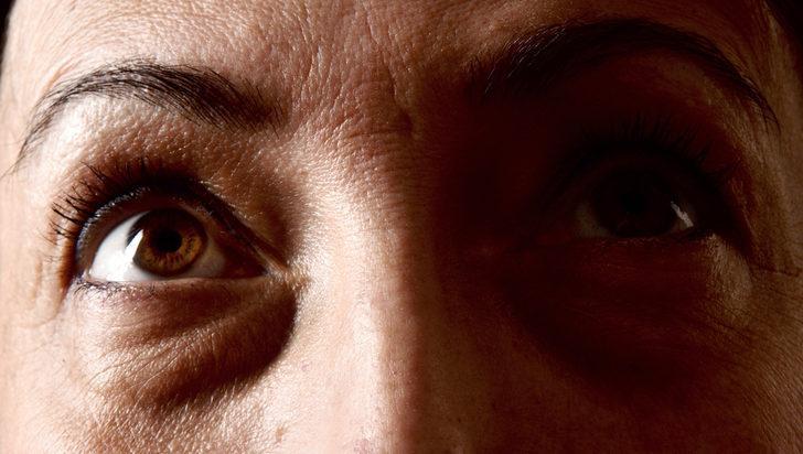 Göz altı torbaları neden olur?