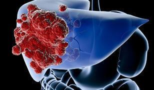 Karaciğer tümörlerine girişimler işlemlerle nokta atışı