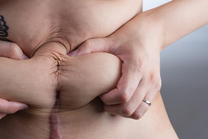 Sezaryen doğum obezite nedeni olabilir mi?