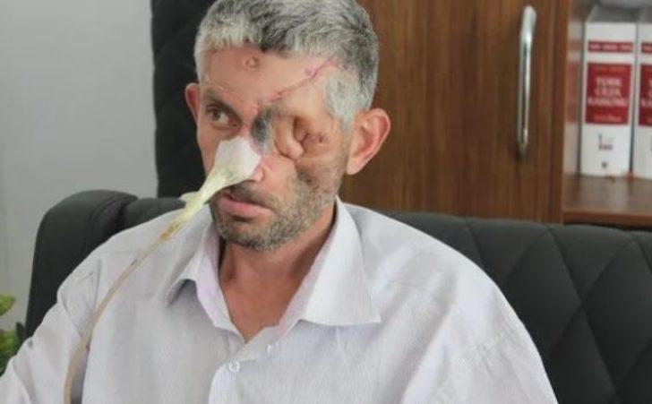 'Dişini çektirdikten sonra gözünü kaybetti' iddiasına yalanlama!