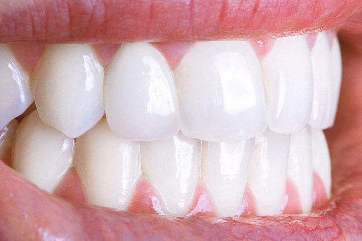 Hollywood gülüşünde diş rengine dikkat