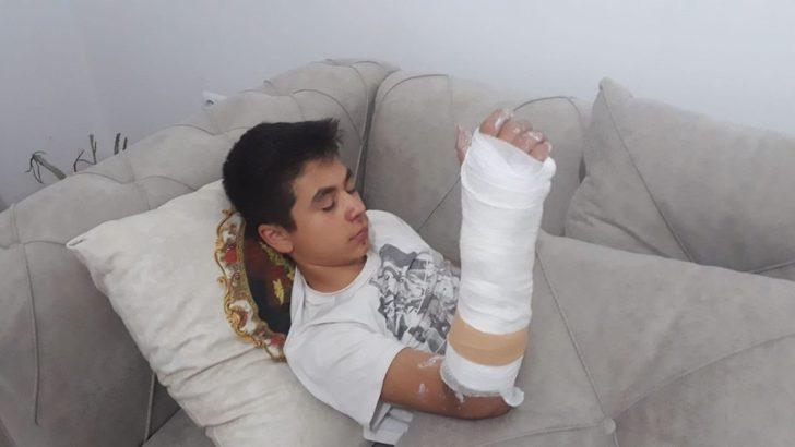 Köpeklerin saldırısından kaçan çocuk kolunu kırdı