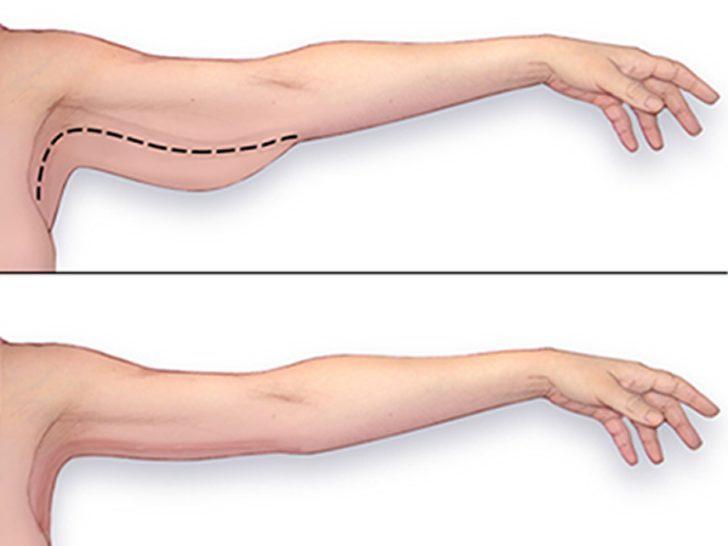 Muhallebi kıvamındaki kollara veda: 3 basit hareketle sarkık kollarınızdan kurtulun