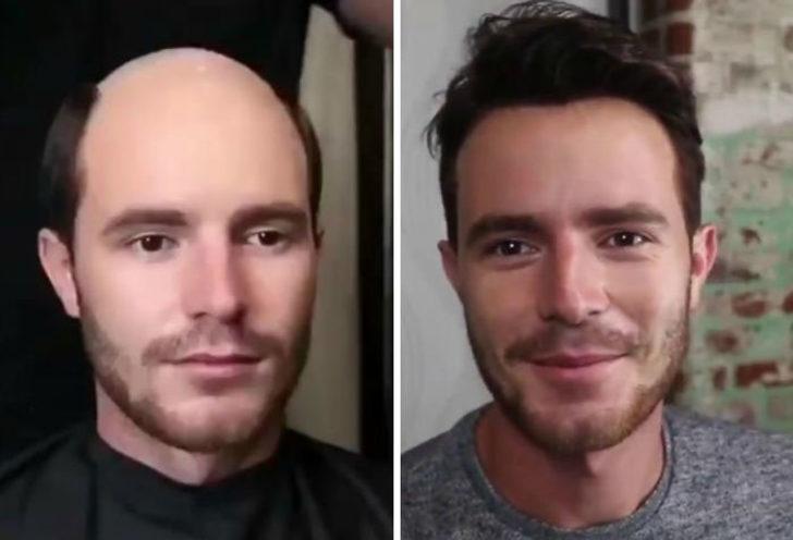 Saç ektiren erkeklerin inanılmaz değişimi!