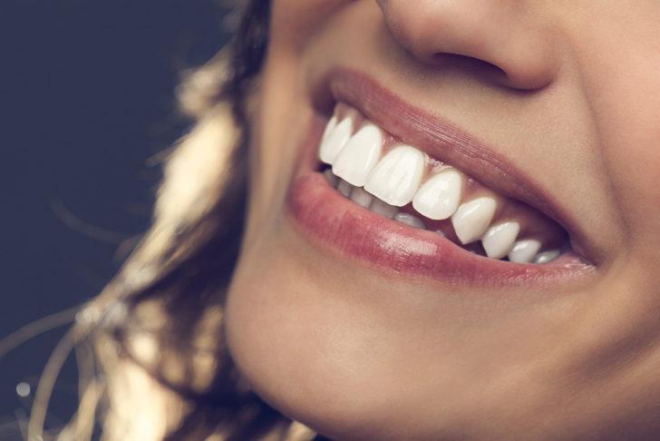 Dişlerdeki boşluklar nasıl kapatılır? Sadece 30 dakika sürüyor! İşte yöntemleri...