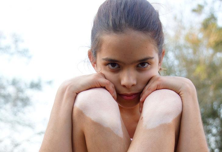 Çocukluk çağı vitiligo'sunda immünoterapinin önemi