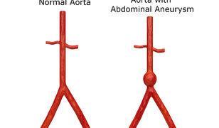 Karnınızdaki saatli bomba: Aort anevrizması