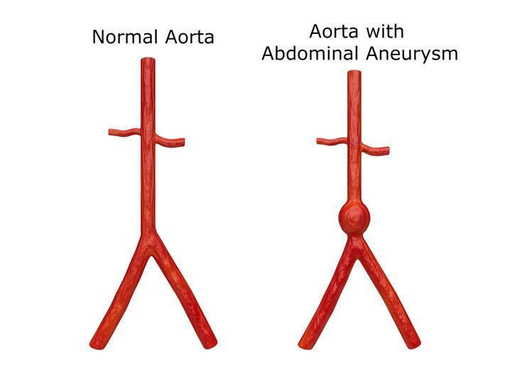 Karnınızdaki saatli bomba: Aort anevrizması! Aort anevrizması nedir? Aort anevrizması belirtileri ve tedavisi nelerdir?