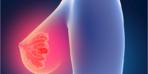Uzmanından önemli uyarı: Her büyük tümör ileri evre kanser değil