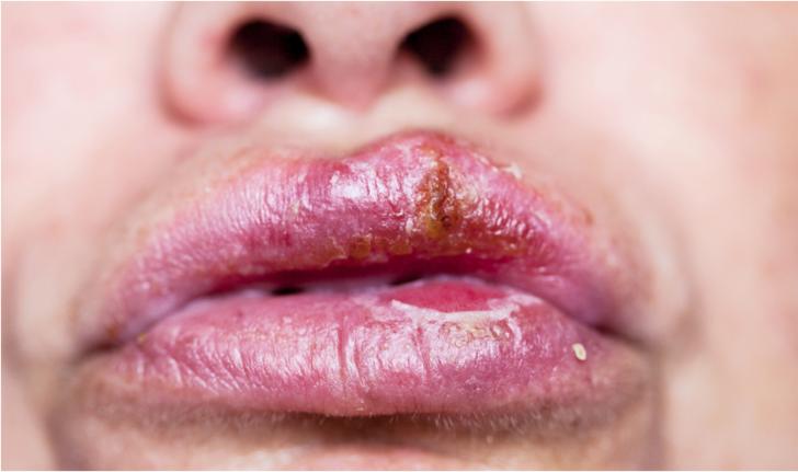 Öpüşmeyle bulaşan hastalıklar bağışıklık sistemini zayıflatıyor