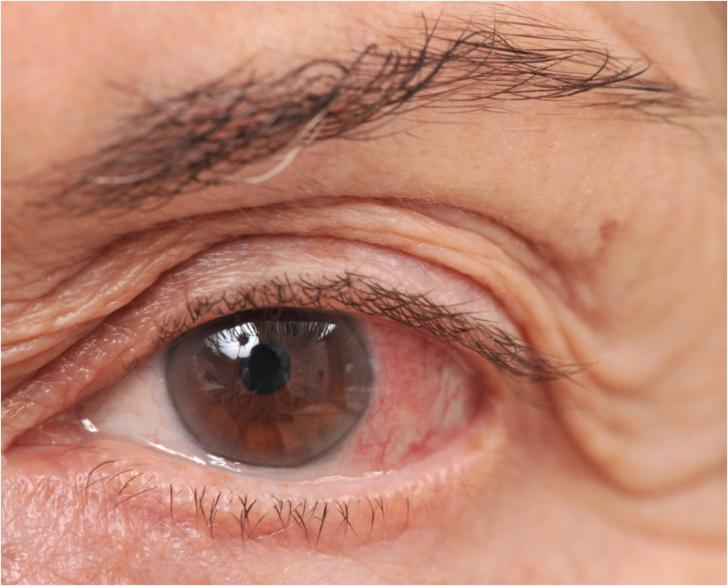 Gözlerde oluşan fazla yağ yorgun görüntüye neden oluyor