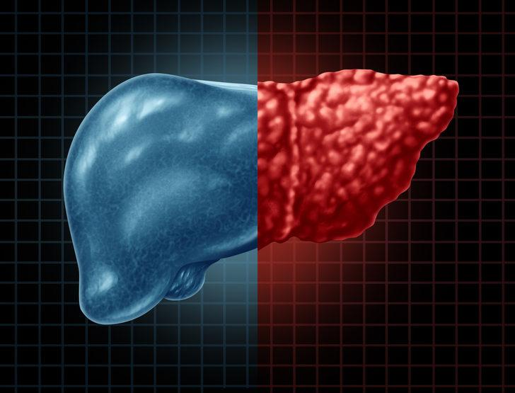 Karaciğer yağlanmasına ne iyi gelir? Karaciğer yağlanması tedavisi hakkında bilgiler
