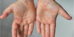 Çocuklarda el, ayak, ağız hastalığı! Bu belirtiler alarm veriyor