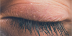 Göz kapaklarınız sarkıyorsa nedeni yorgunluk olabilir